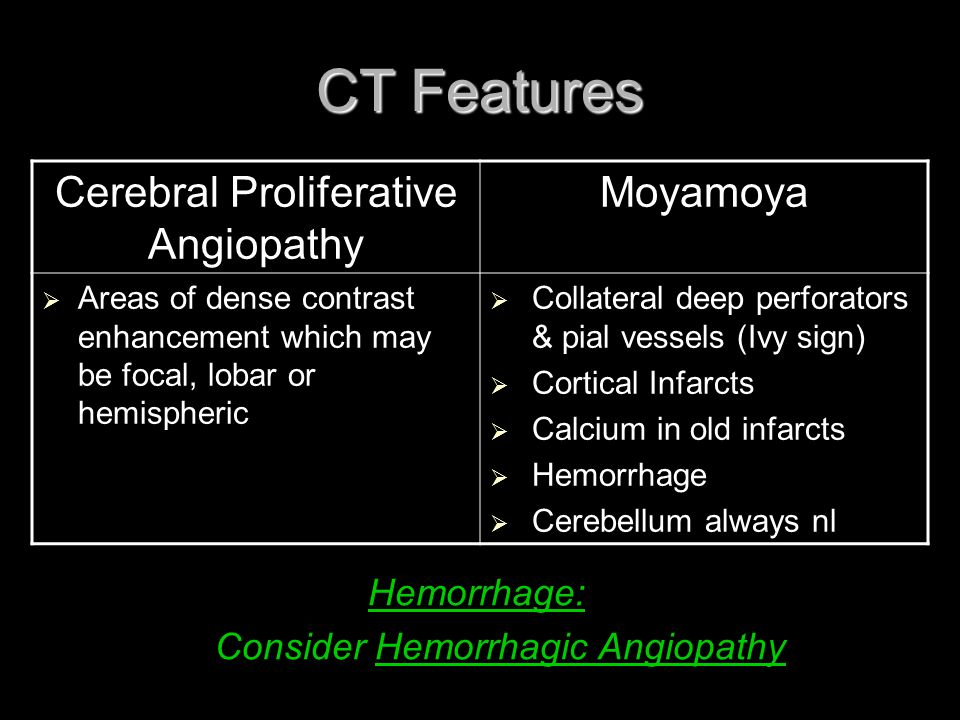 CT Features Cerebral Proliferative Angiopathy Moyamoya Hemorrhage: