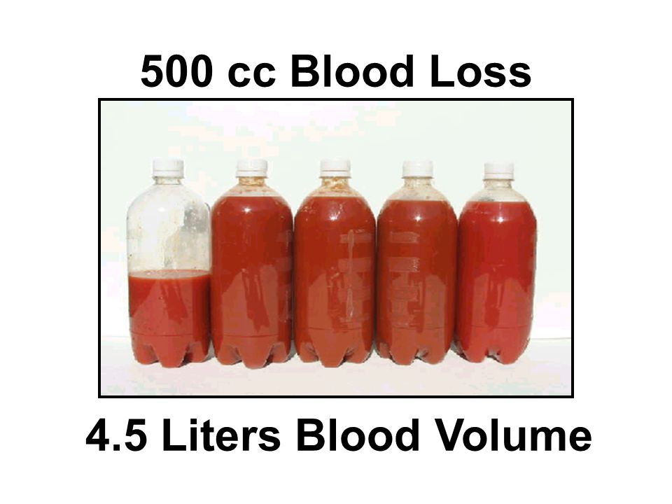 500 cc Blood Loss 4.5 Liters Blood Volume