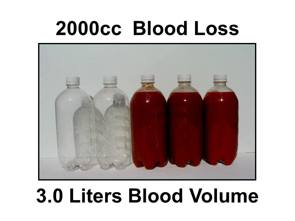 2000cc Blood Loss 3.0 Liters Blood Volume