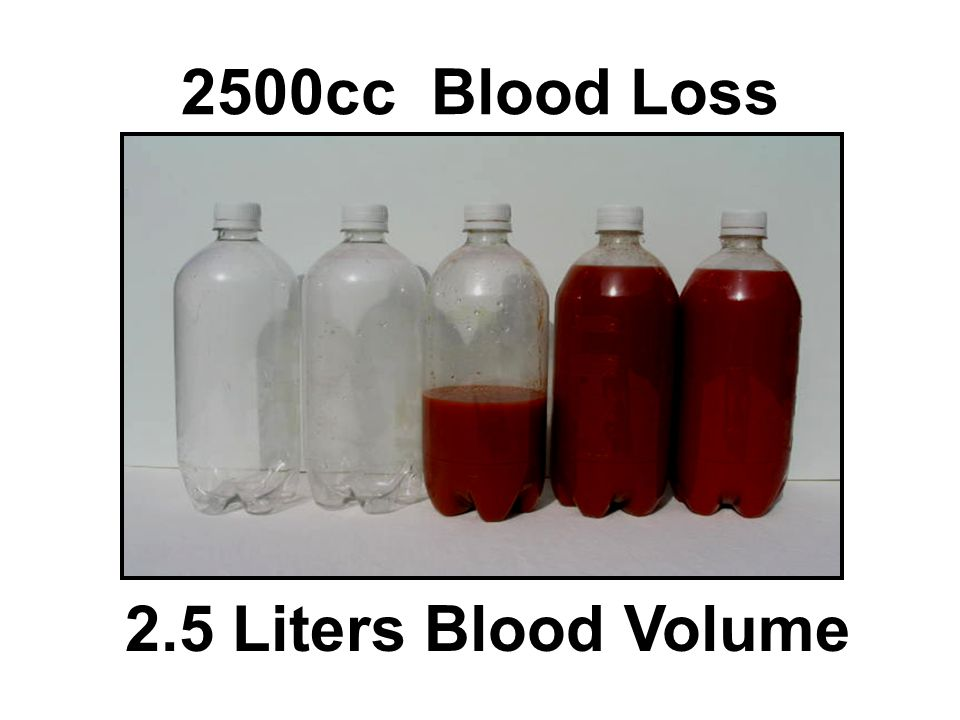 2500cc Blood Loss 2.5 Liters Blood Volume