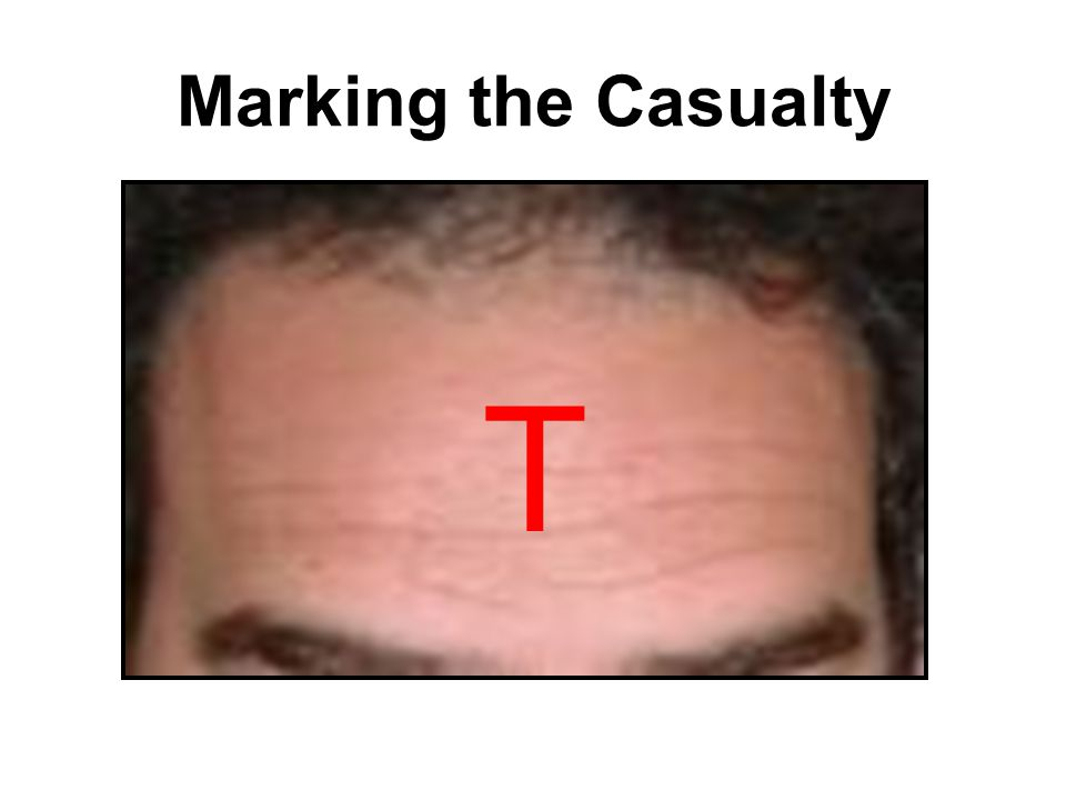 Marking the Casualty T
