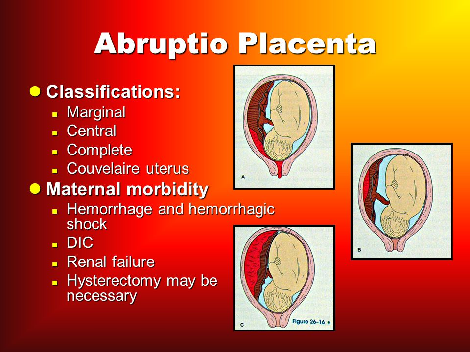 Abruptio Placenta Classifications: Maternal morbidity Marginal Central
