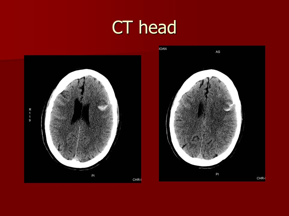 CT head