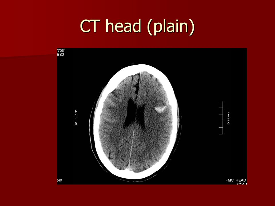 CT head (plain)