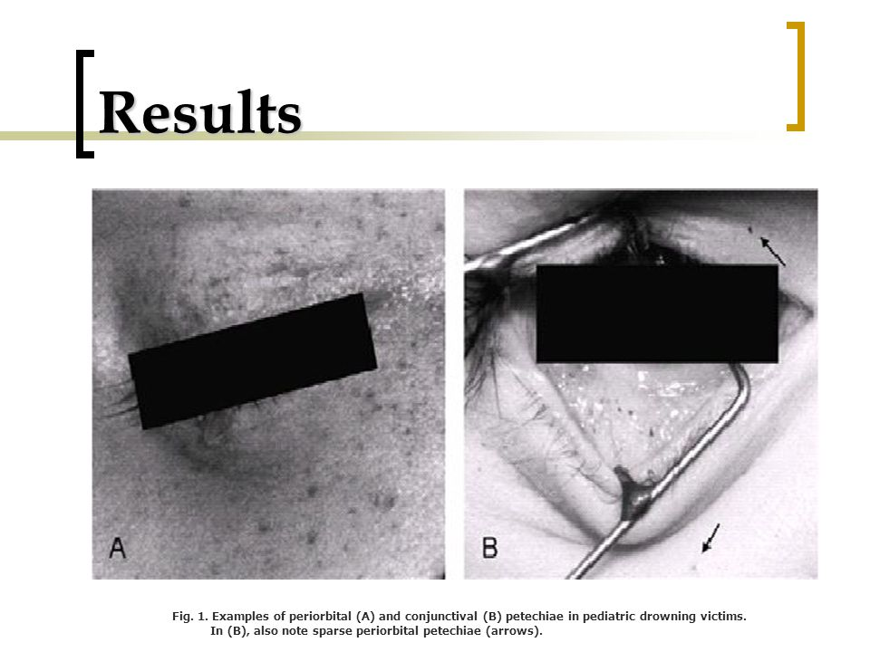 Results Fig. 1. Examples of periorbital (A) and conjunctival (B) petechiae in pediatric drowning victims.