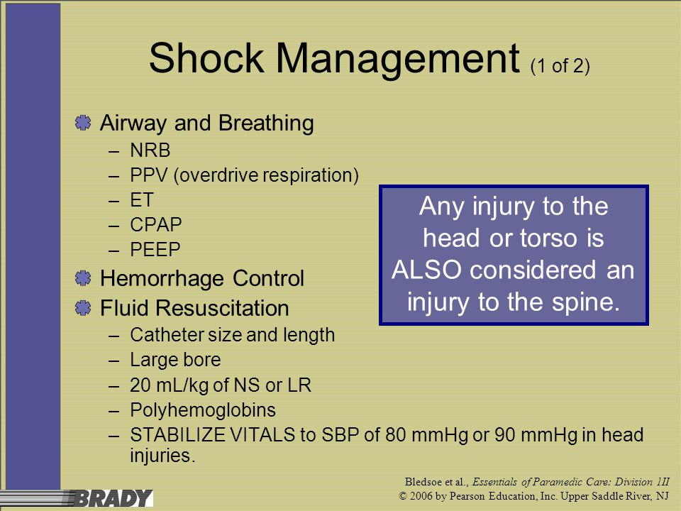 Shock Management (1 of 2) Airway and Breathing. NRB. PPV (overdrive respiration) ET. CPAP. PEEP.
