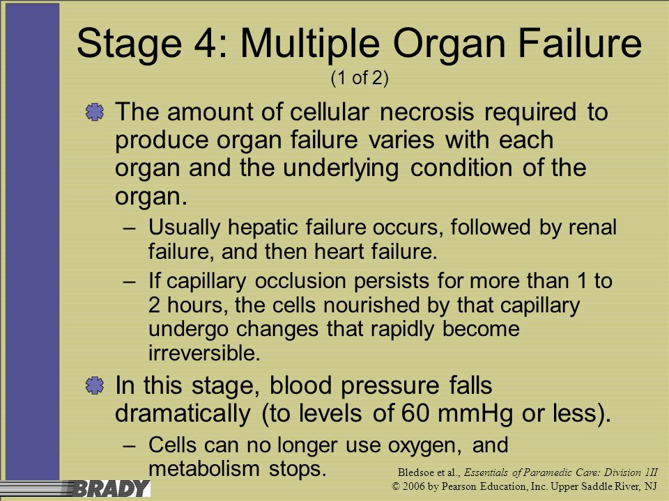 Stage 4: Multiple Organ Failure (1 of 2)