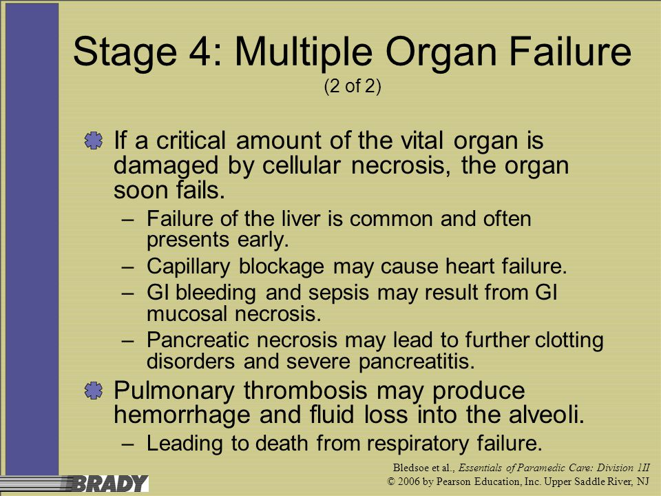 Stage 4: Multiple Organ Failure (2 of 2)