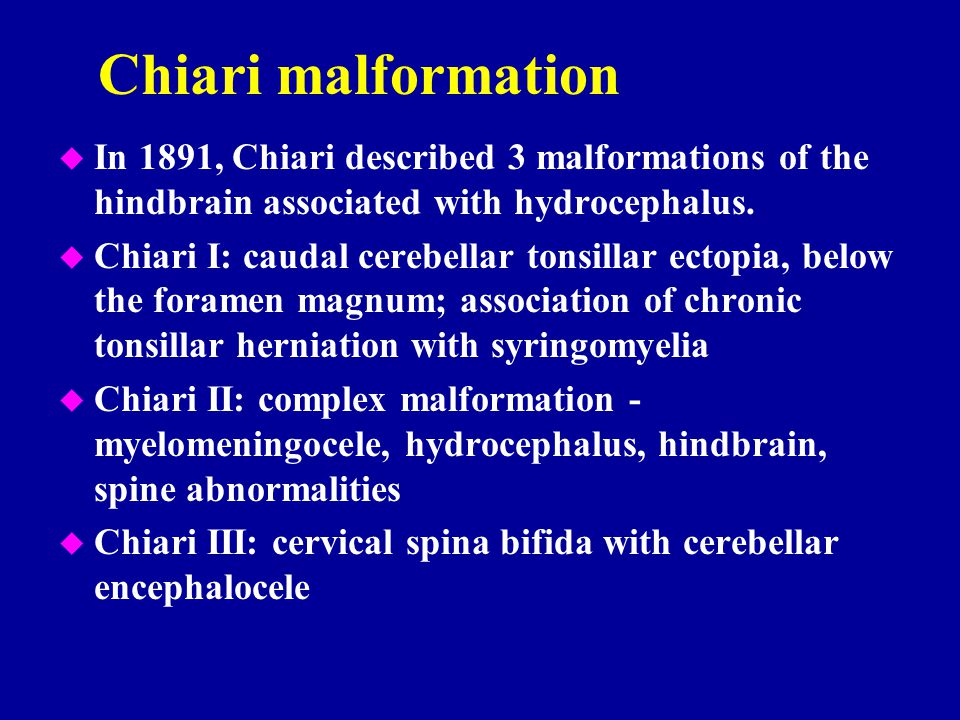 Chiari malformation In 1891, Chiari described 3 malformations of the hindbrain associated with hydrocephalus.