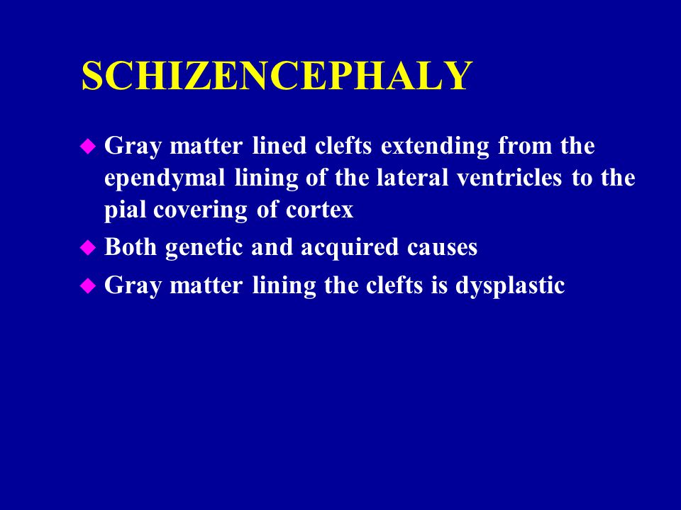 SCHIZENCEPHALY Gray matter lined clefts extending from the ependymal lining of the lateral ventricles to the pial covering of cortex.