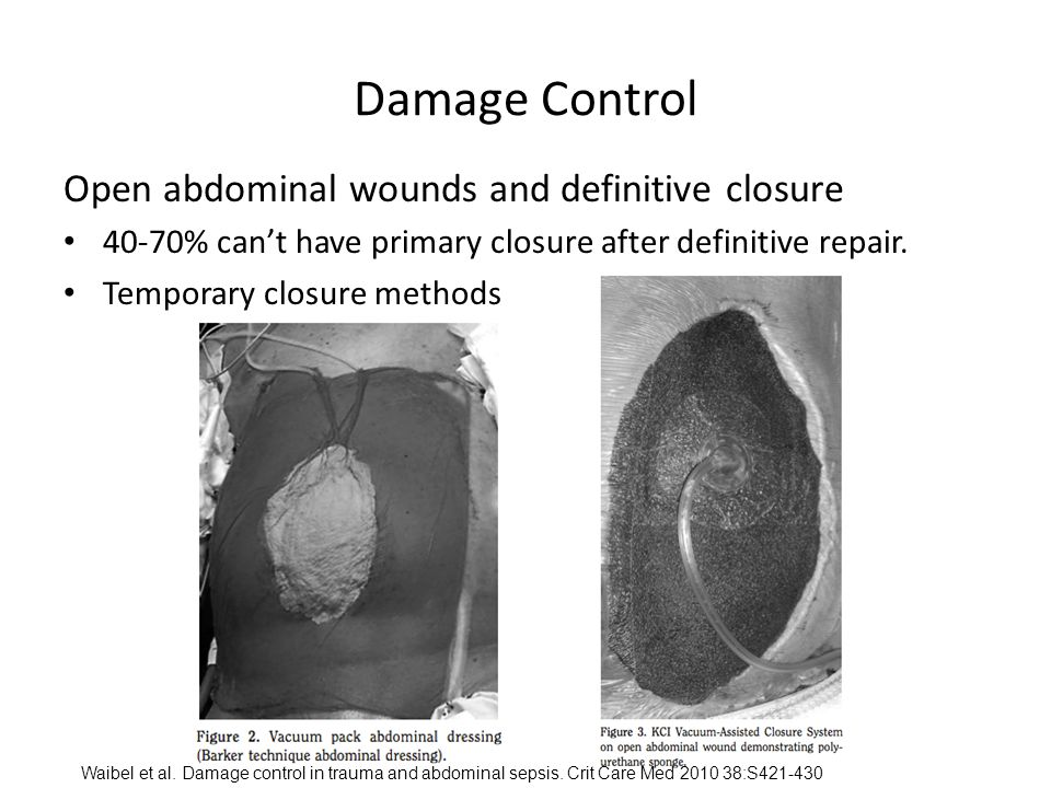 Damage Control Open abdominal wounds and definitive closure