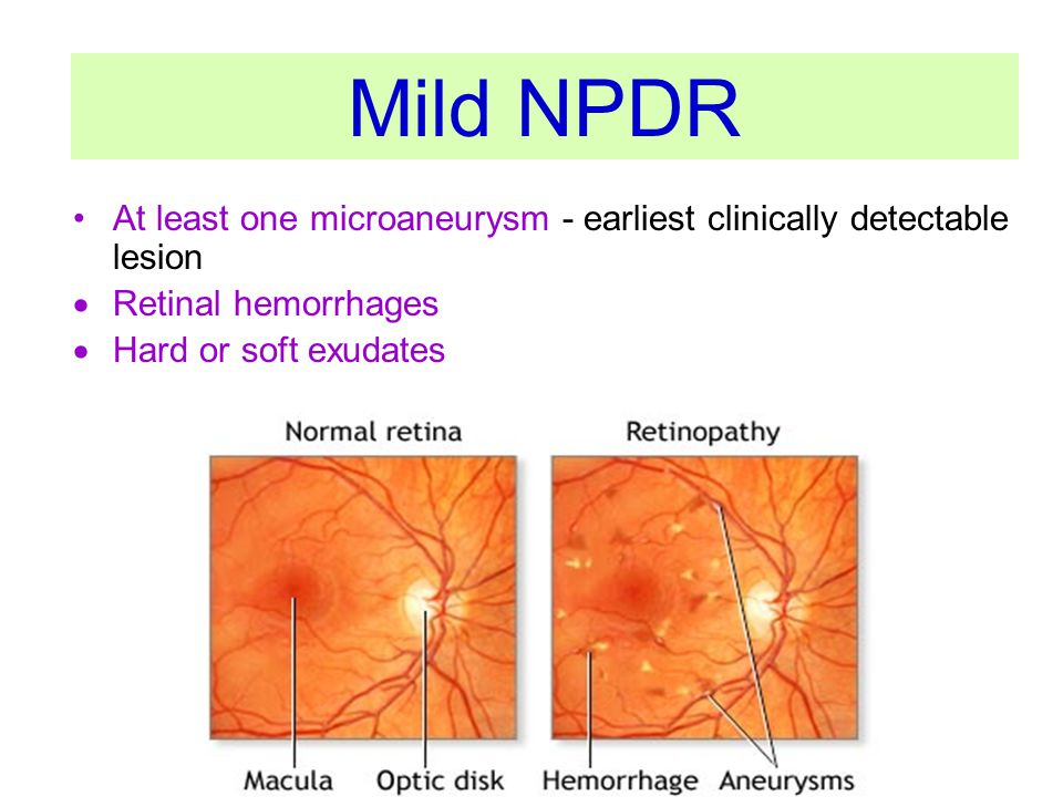 Mild NPDR At least one microaneurysm - earliest clinically detectable lesion. Retinal hemorrhages.