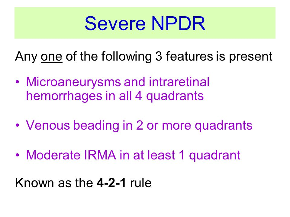 Severe NPDR Any one of the following 3 features is present