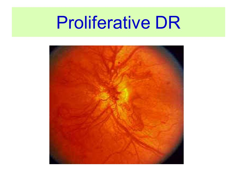 Proliferative DR NVD