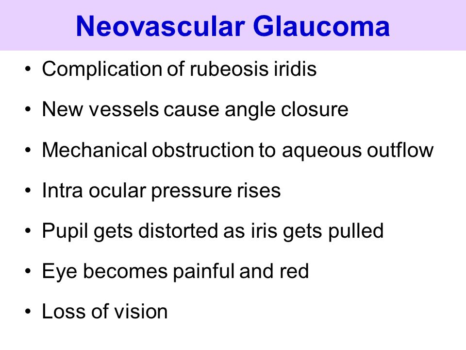 Neovascular Glaucoma Complication of rubeosis iridis