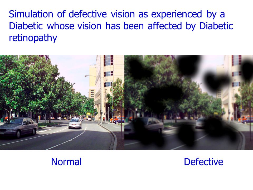 Simulation of defective vision as experienced by a Diabetic whose vision has been affected by Diabetic retinopathy