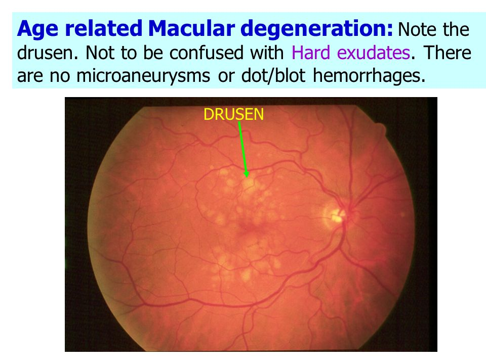 Age related Macular degeneration: Note the drusen
