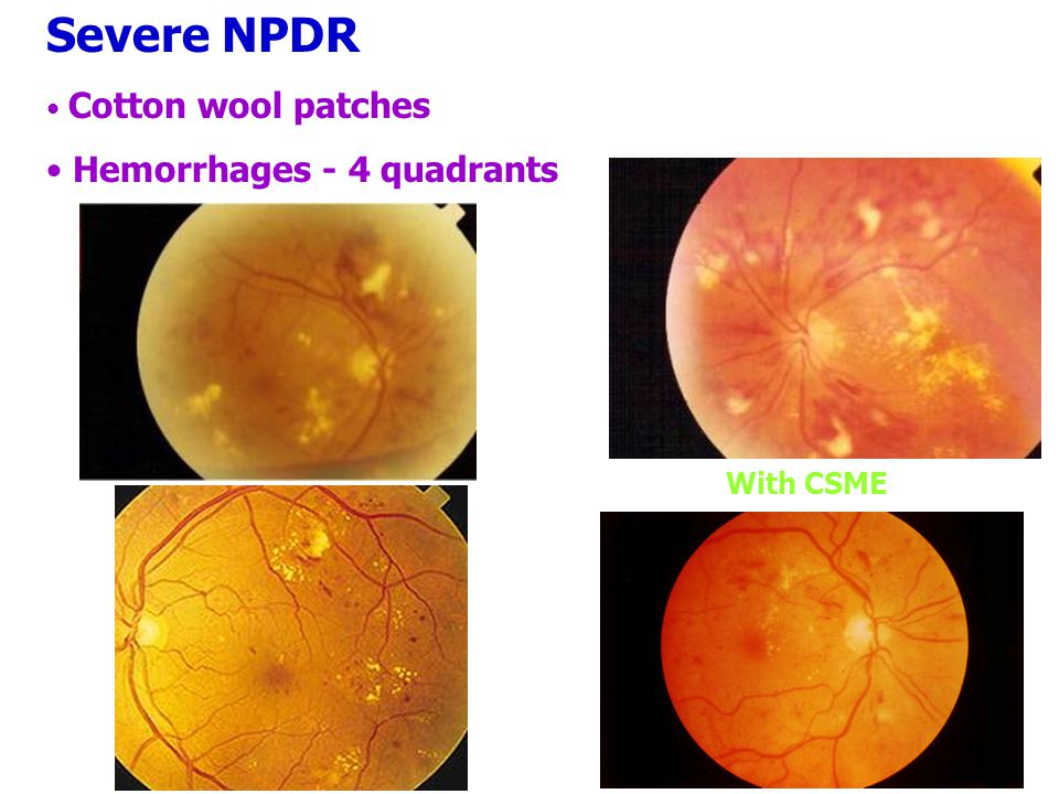 Severe NPDR Cotton wool patches Hemorrhages - 4 quadrants With CSME