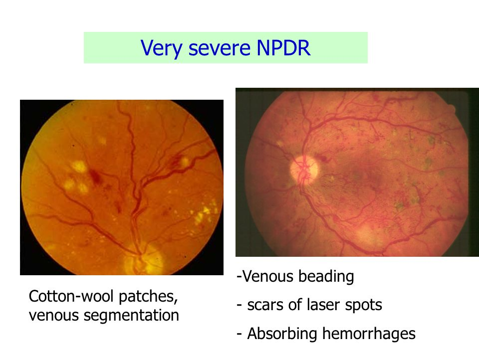 Very severe NPDR Venous beading scars of laser spots