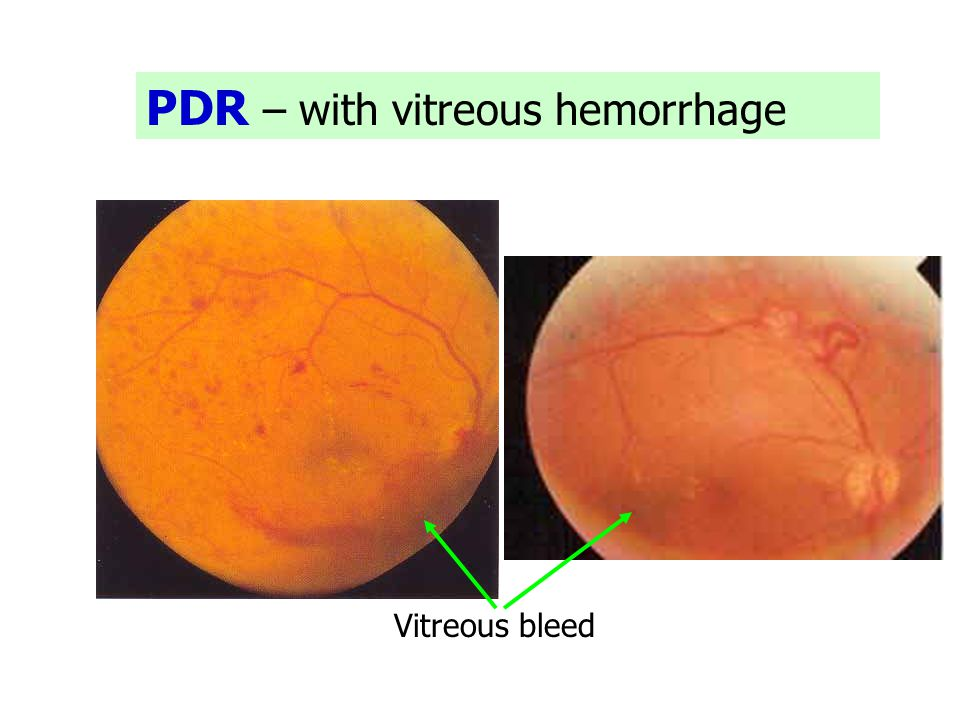 PDR – with vitreous hemorrhage