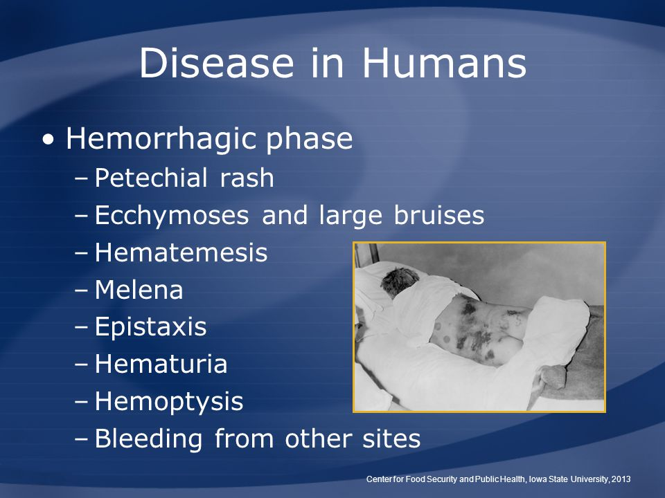 Disease in Humans Hemorrhagic phase Petechial rash