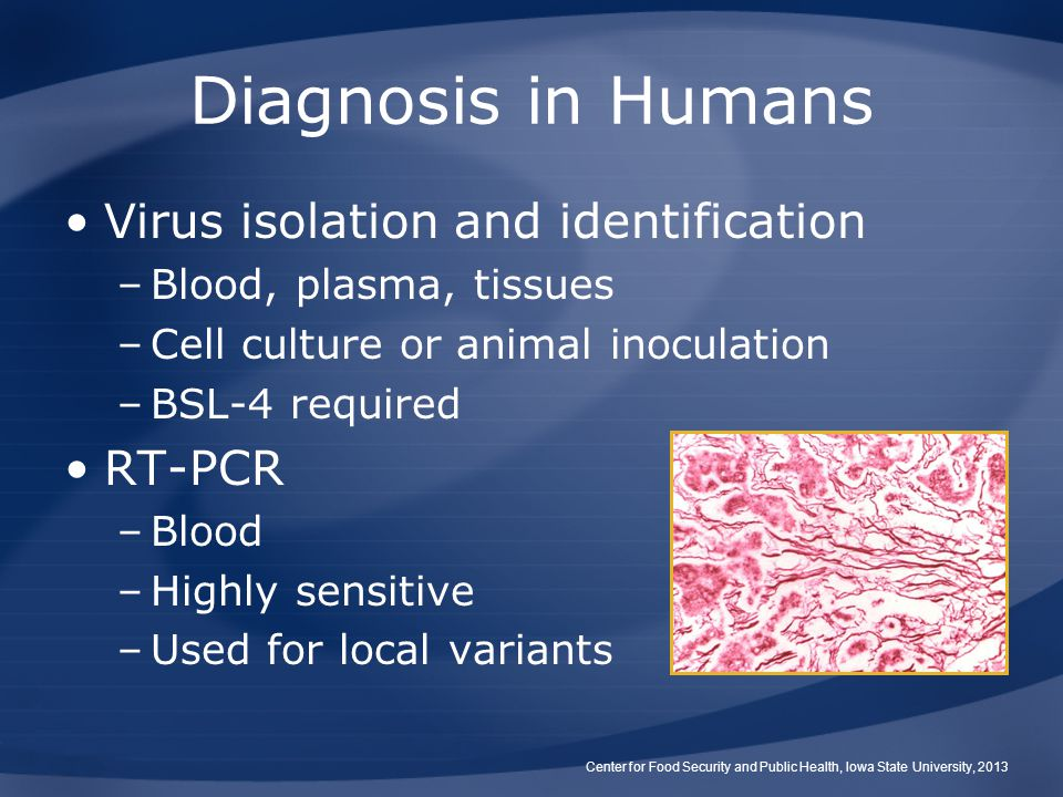Diagnosis in Humans Virus isolation and identification RT-PCR