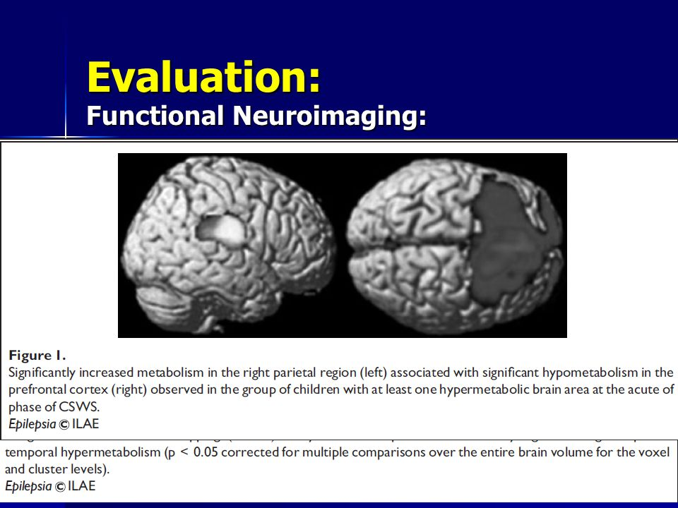 Evaluation: Functional Neuroimaging: CSWS: