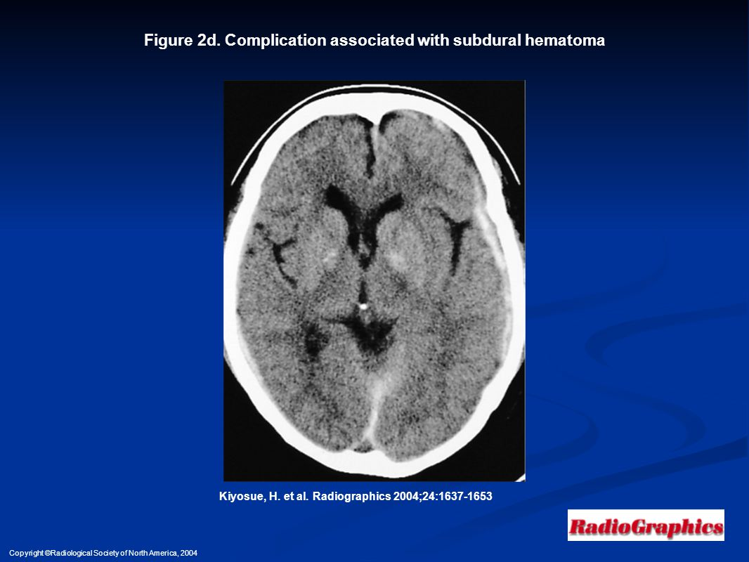 Figure 2d. Complication associated with subdural hematoma