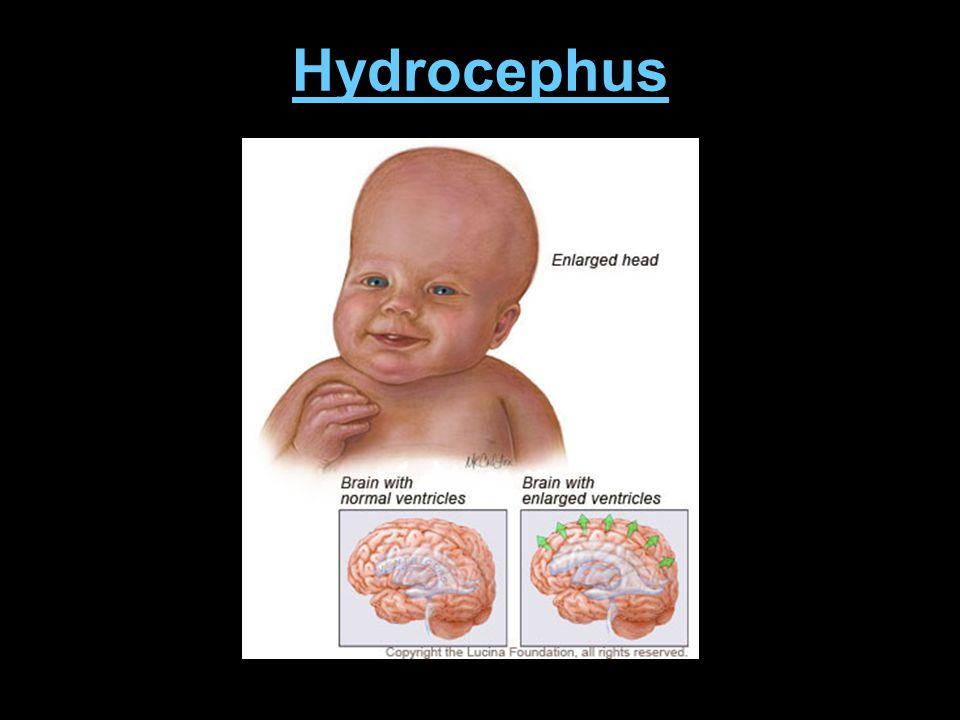 Hydrocephus