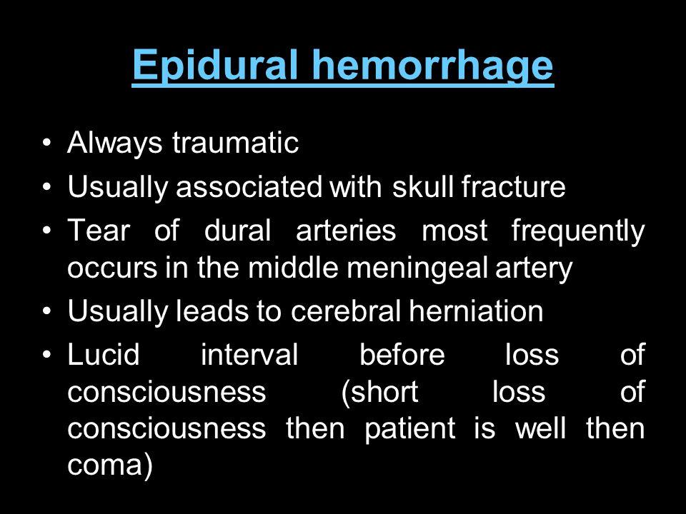 Epidural hemorrhage Always traumatic