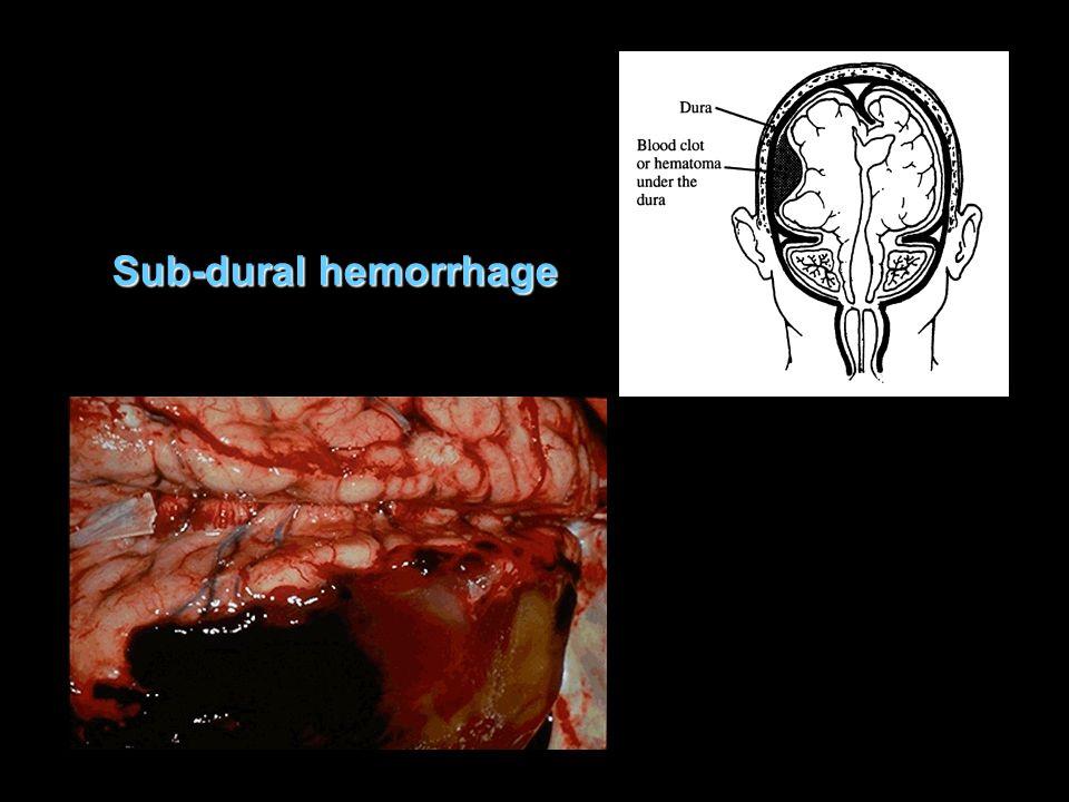 Sub-dural hemorrhage