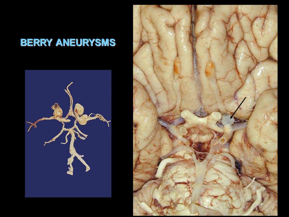 BERRY ANEURYSMS