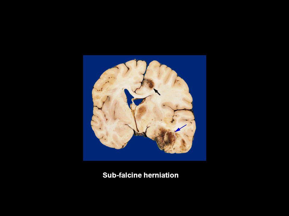 Sub-falcine herniation