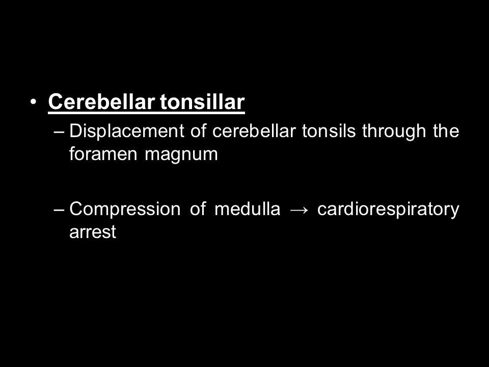 Cerebellar tonsillar Displacement of cerebellar tonsils through the foramen magnum.