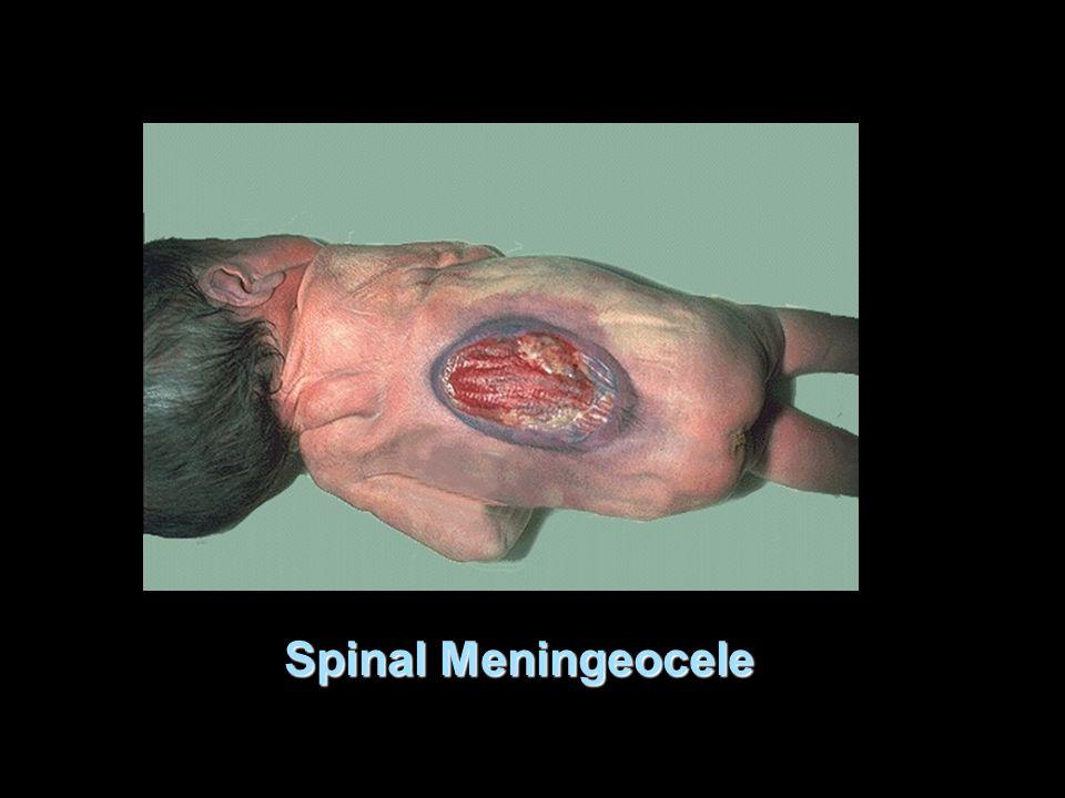 Spinal Meningeocele