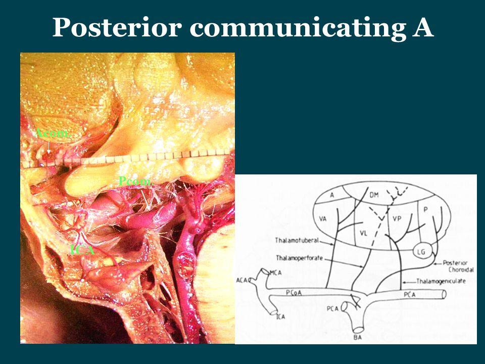 Posterior communicating A