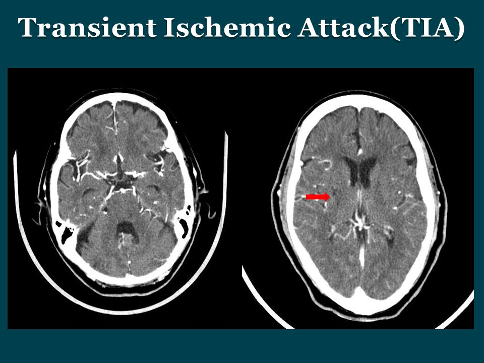 transient ischemic attack Define transient ischemic attack: a brief episode of cerebral ischemia that is usually characterized by temporary blurring of vision, slurring of .