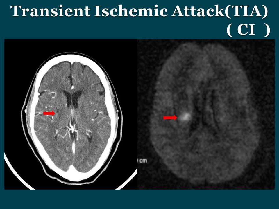 Transient Ischemic Attack(TIA) ( CI )