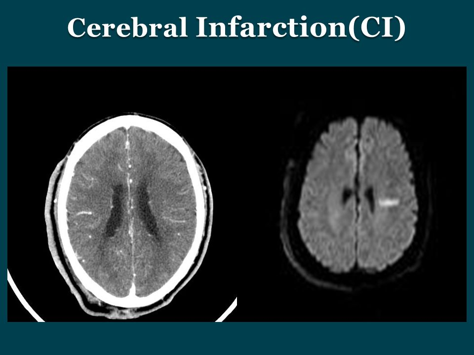 Cerebral Infarction(CI)