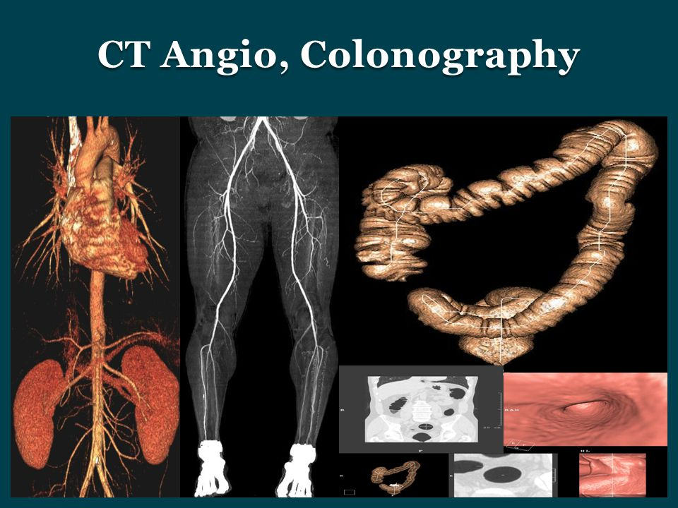 CT Angio, Colonography