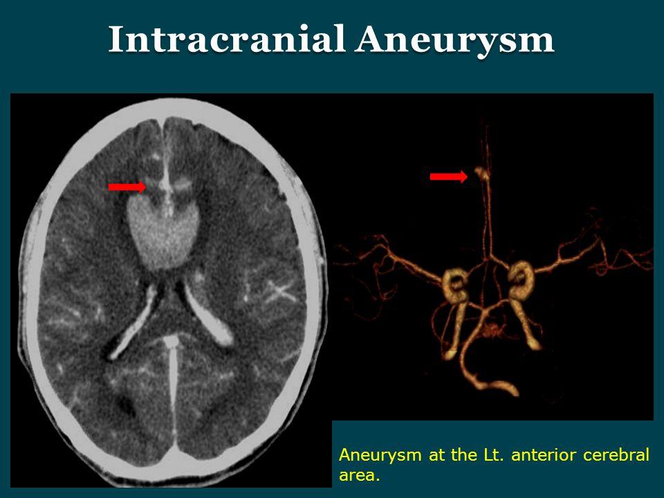 Intracranial Aneurysm