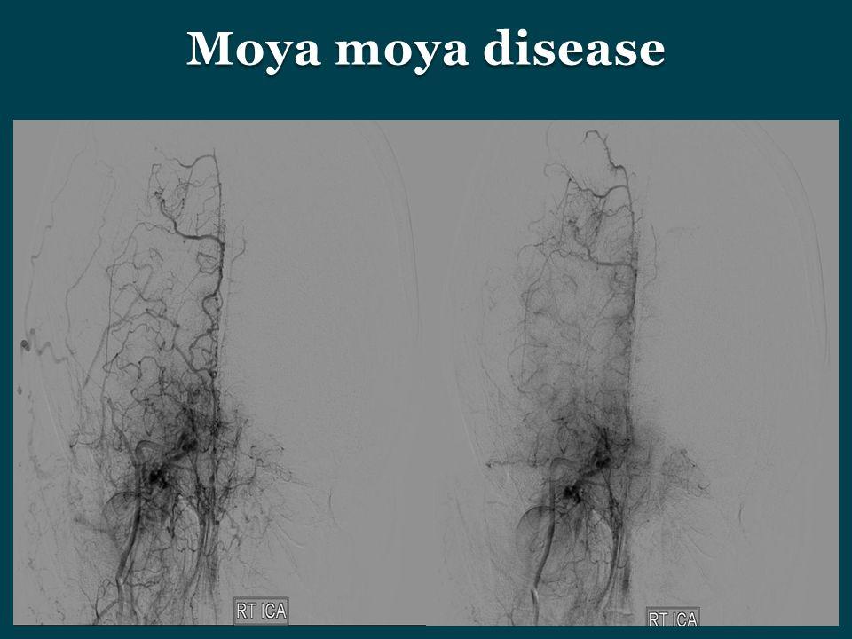 Moya moya disease