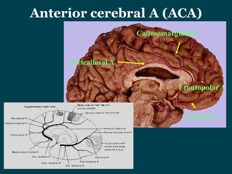Anterior cerebral A (ACA)