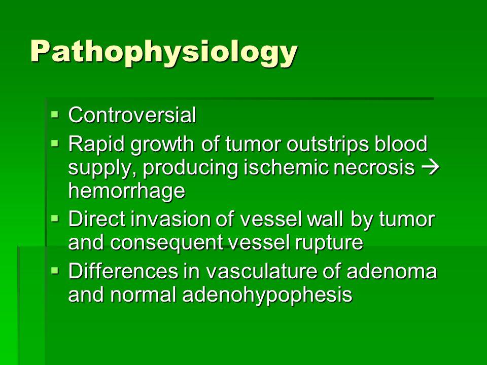 Pathophysiology Controversial
