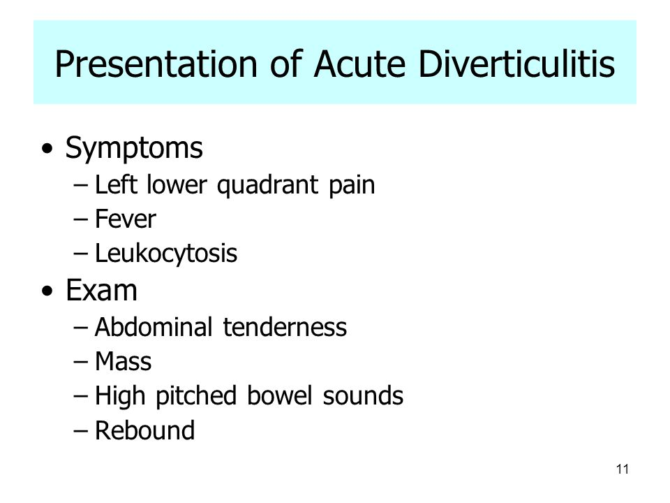 Presentation of Acute Diverticulitis