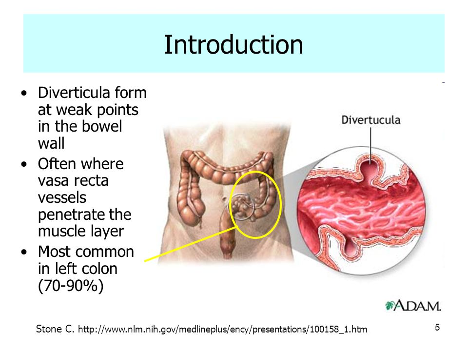 Introduction Diverticula form at weak points in the bowel wall