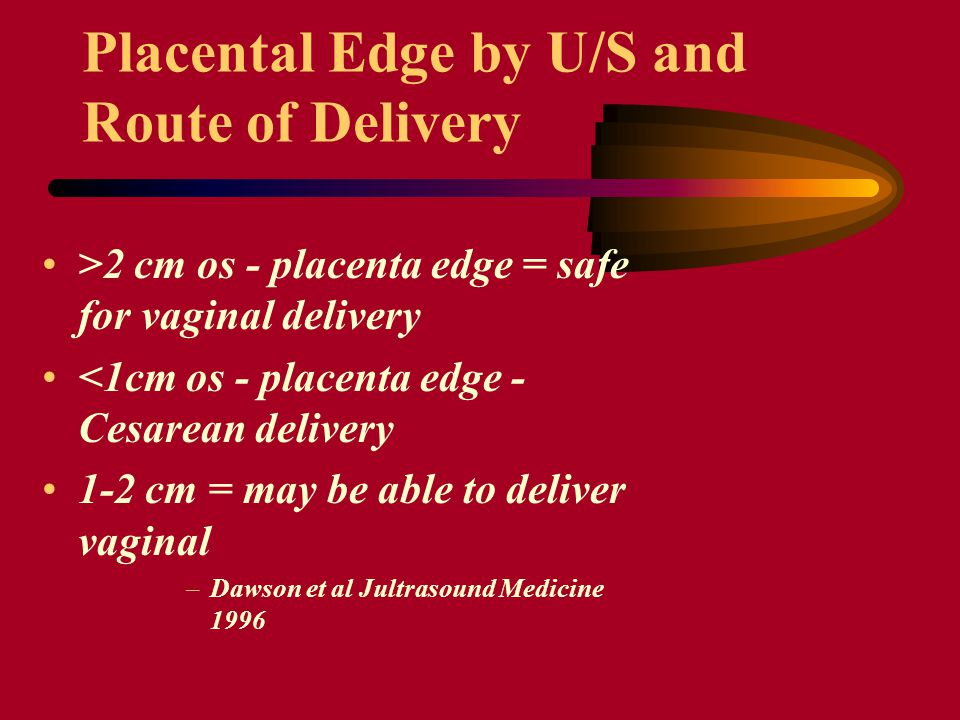 Placental Edge by U/S and Route of Delivery