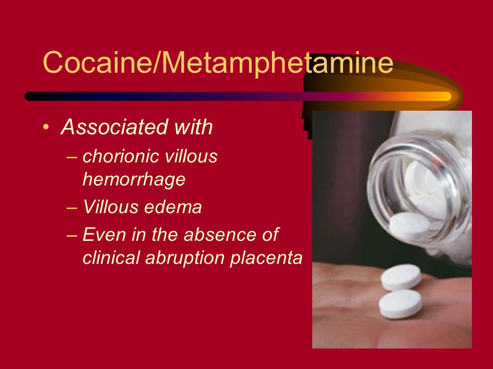 Cocaine/Metamphetamine