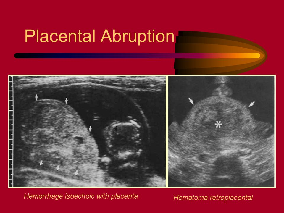 Placental Abruption Hemorrhage isoechoic with placenta
