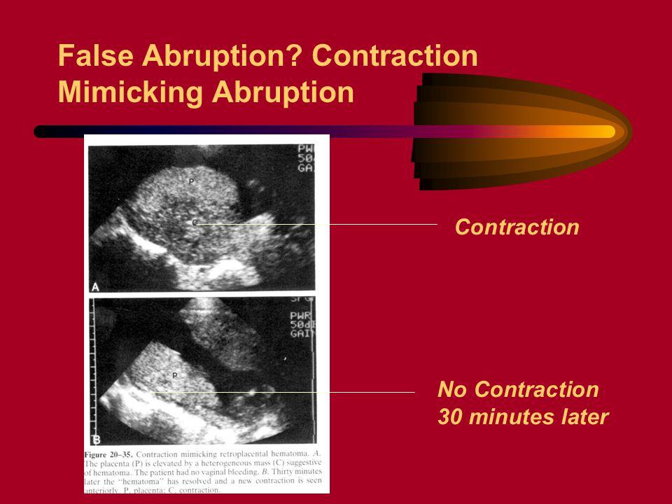 False Abruption Contraction Mimicking Abruption